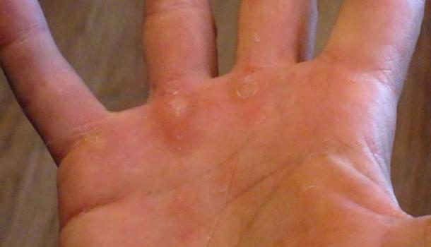 tennis-callus-hands